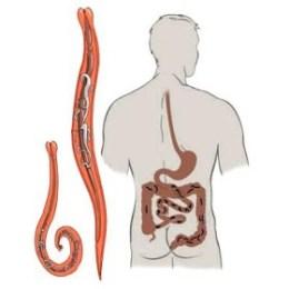 Распространенные паразиты в организме человека