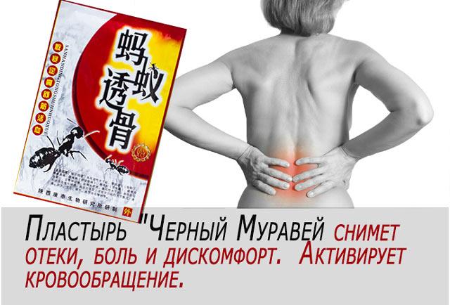 Китайский муравьиный пластырь обезболивающий
