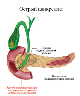 Травы для поджелудочной железы в аптеке