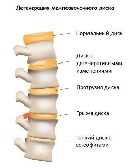 Пластырь для лечения грыжи позвоночника